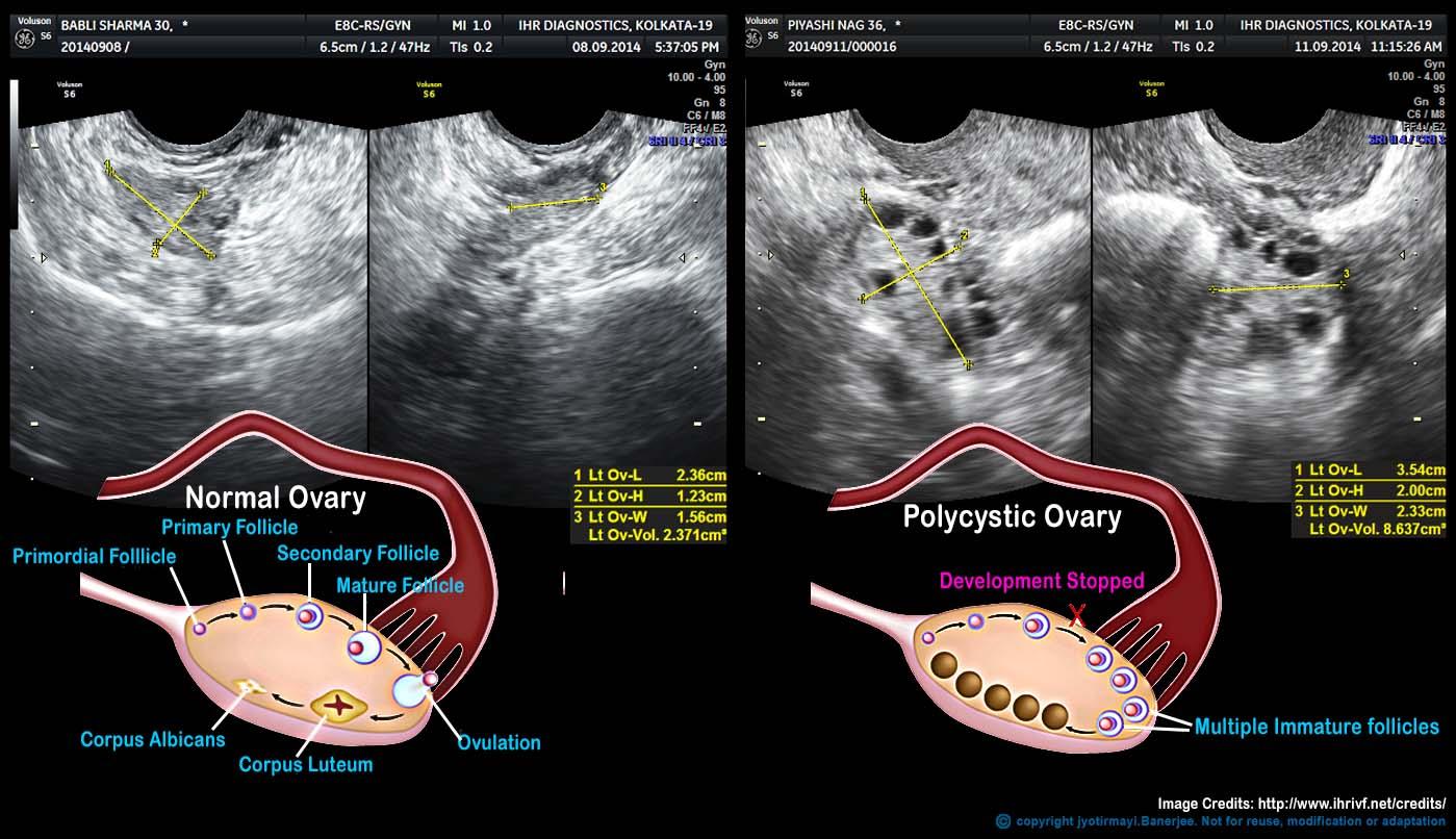 treatment polycystic ovarian syndrome