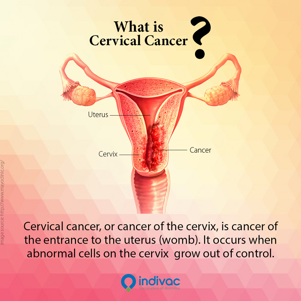 abnormal cervical cancer Cervical cancer is caused by severe abnormal changes in the cells lining the cervix or the lower part of a woman's uterus in most cases, precancerous or cancerous cell changes occur in the cervix at the transformation zone, as these cells are constantly changing.